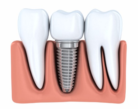 Dental Implants, Ottawa Dentist